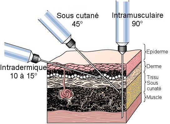 vaccin grippe sous cutane ou intramusculaire
